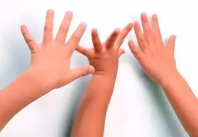 弹钢琴手指跨度|当小手碰到大跨度,该怎么办?